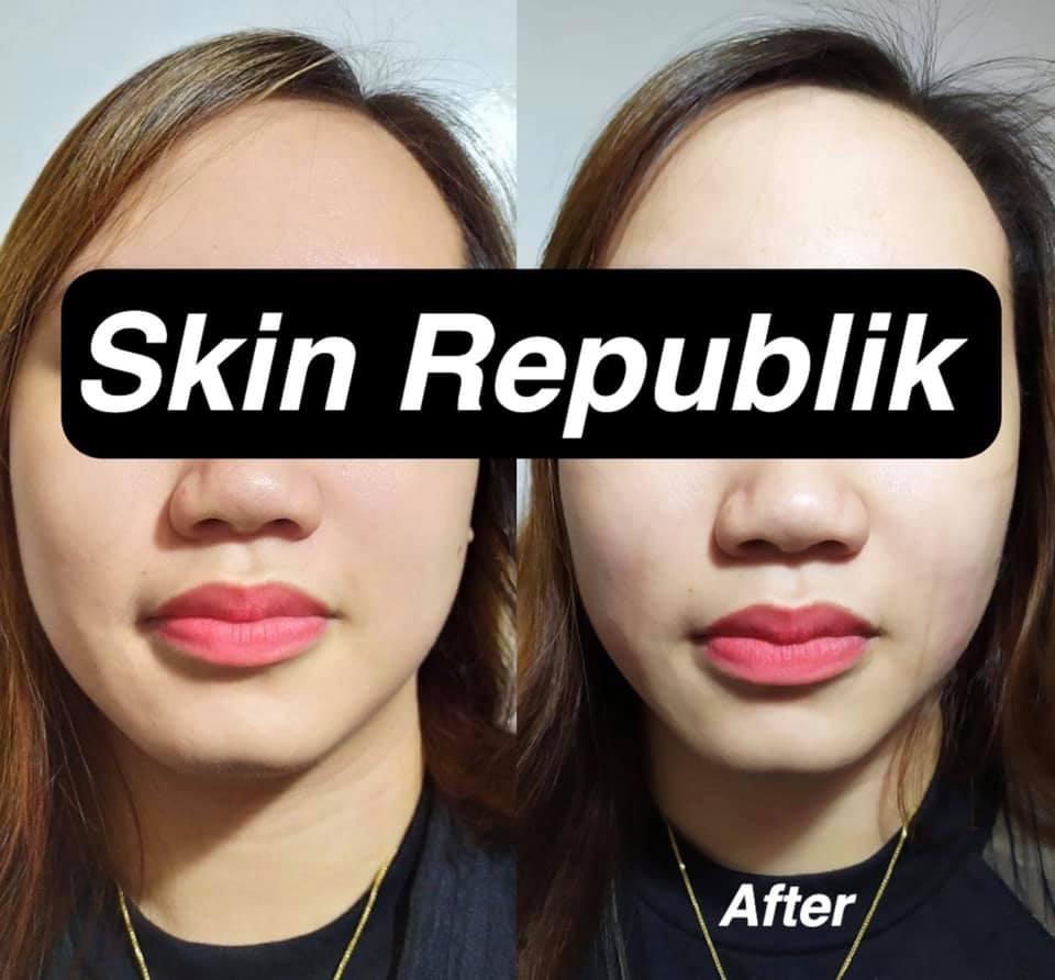 Skin Republik 3